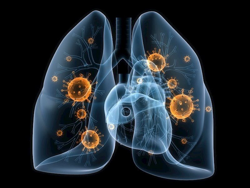 Oncogenomics y Pangaea se alían para lograr más información de algunos tipos de cáncer