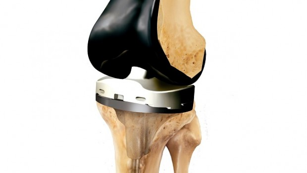 smith nephew knee